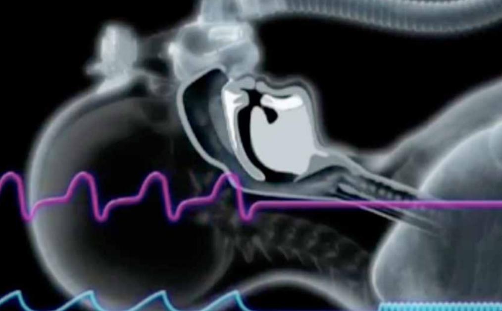 Course Image Diplomado en Terapia Ventilatoria en Trastornos Respiratorios del Sueño