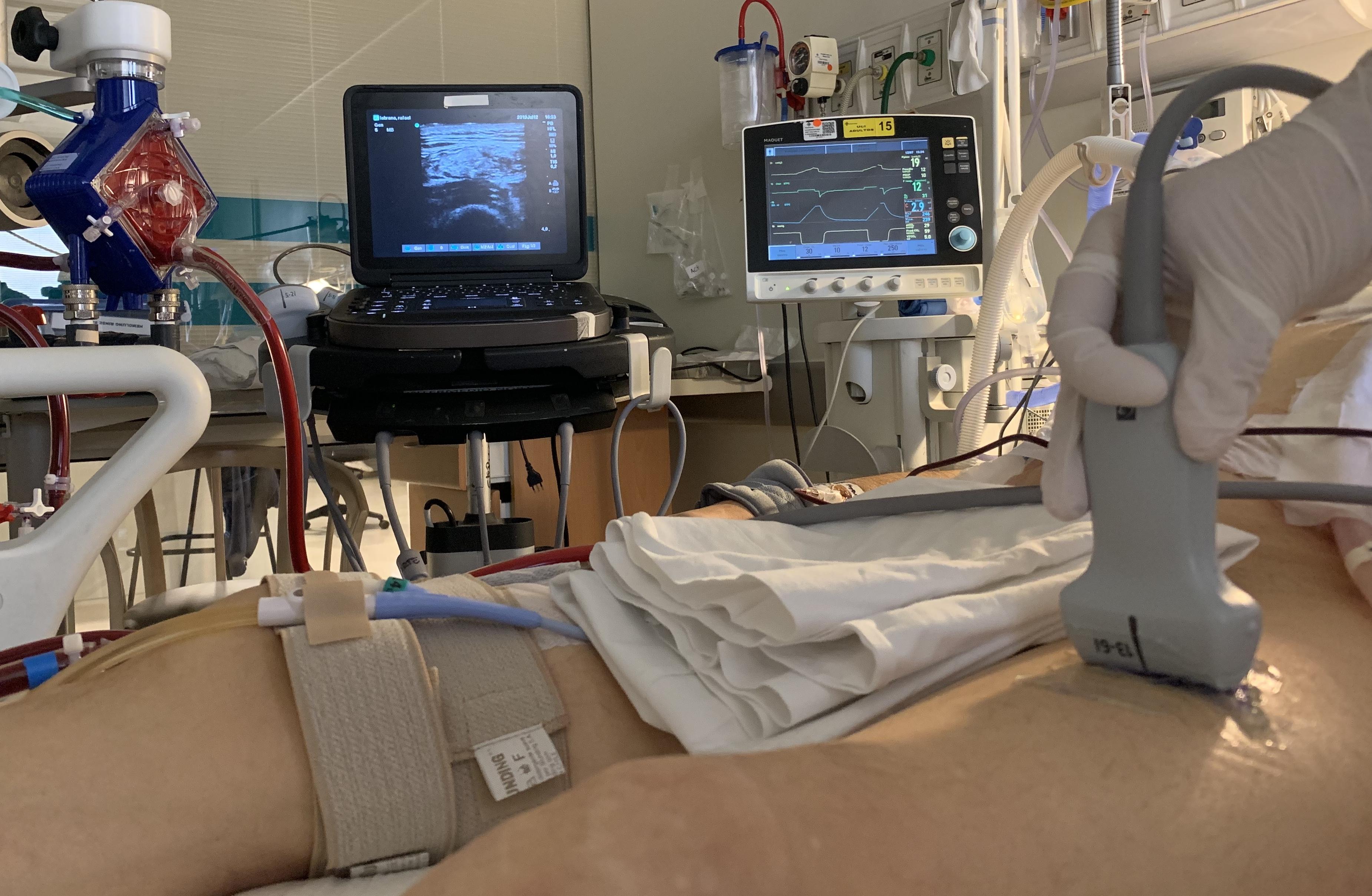 Course Image Curso Ecografía muscular orientada al paciente crítico: evaluación y seguimiento